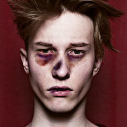 freetoedit bruises